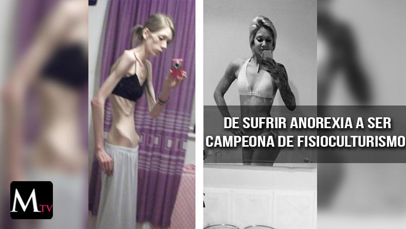 La joven anoréxica que se convirtió en campeona de fisicoculturismo